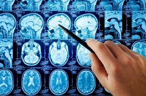 Can You Identify the Signs of a Traumatic Brain Injury After a Car Crash?
