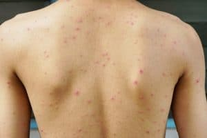 North Carolina's Chickenpox Outbreak Is Serious